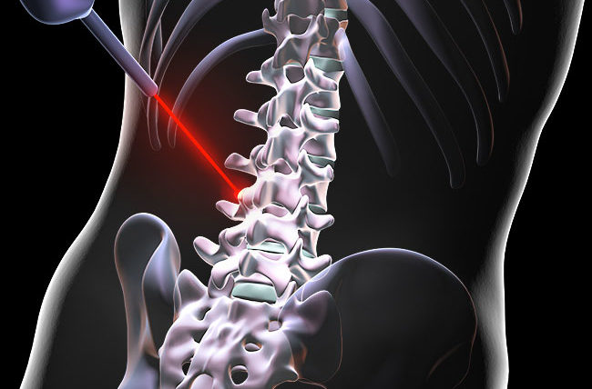 Can Laser Spine Surgery Fix Your Back Pain? – Health Essentials from  Cleveland Clinic